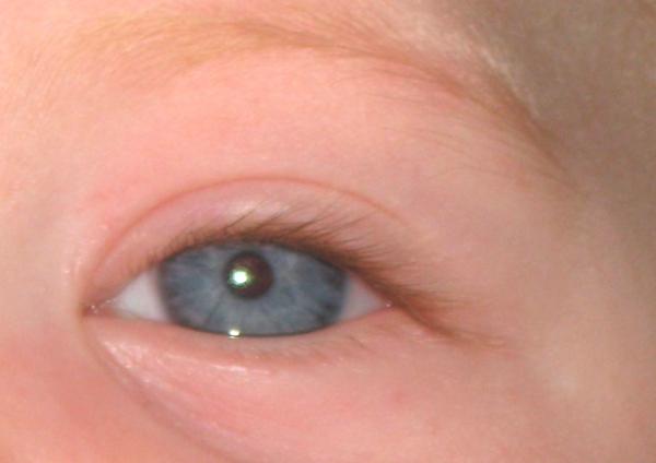 eyepeaches