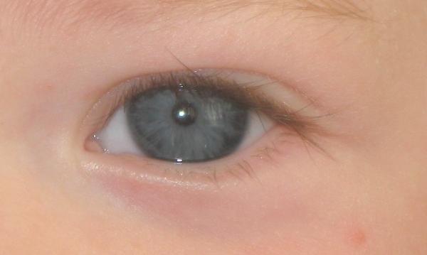 eyeplum